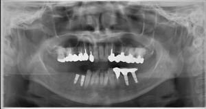 友生歯科医院インプラント施術例 無断転載禁止