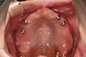 インプラントを用いた総義歯
