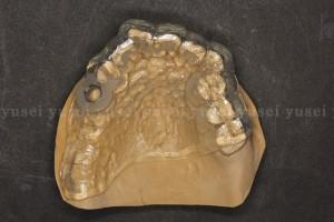 歯牙支持型サージカルガイド