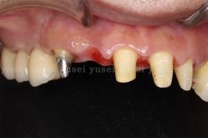 上顎前歯部に従来のブリッジによる歯冠補綴治療を行った症例01