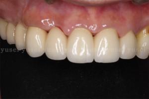 上顎前歯部に従来のブリッジによる歯冠補綴治療を行った症例02