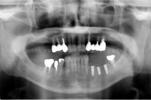 嘔吐反射の強い患者さんにインプラント治療を行った症例01