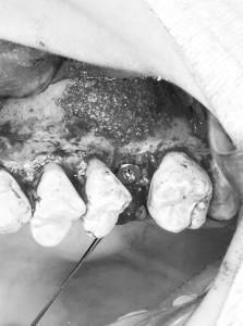Brillia City横浜磯子友生歯科医院の手術室で静脈内鎮静法を用いてサイナスリフトを行った症例02