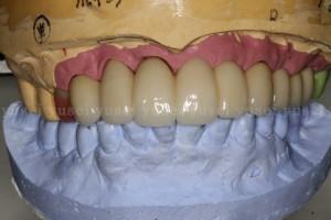 上顎洞底拳上手術を行い審美領域も含めた上顎に7本のインプラントを埋入した症例01