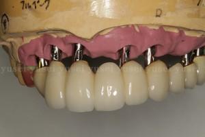 上顎洞底拳上手術を行い審美領域も含めた上顎に7本のインプラントを埋入した症例02