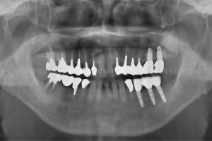 静脈内鎮静法を用いて1時間の手術で3本のインプラントを埋入した症例1