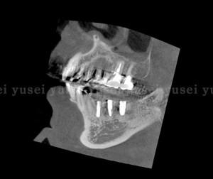 静脈内鎮静法を用いて1時間の手術で3本のインプラントを埋入した症例2