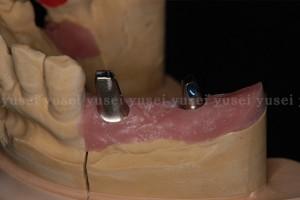 アトランティスアバットメントを用いた臼歯部のインプラント修復2