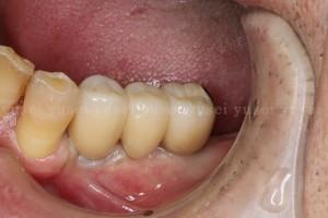 アトランティスアバットメントを用いた臼歯部のインプラント修復6