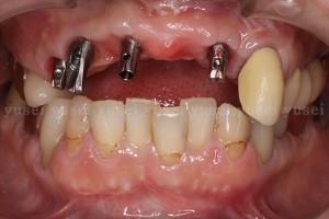 骨の委縮がみられる上顎前歯部欠損に対し、インプラントによる審美修復を行った症例03