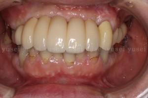 骨の委縮がみられる上顎前歯部欠損に対し、インプラントによる審美修復を行った症例04