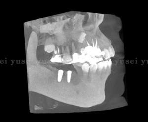 右下顎に2本のインプラントを埋入し骨補填剤を充填した症例06