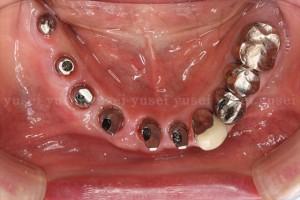 アトランティスアバットメントの利点と前歯部に装着した症例01