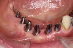 アトランティスアバットメントの利点と前歯部に装着した症例02