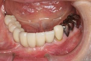 アトランティスアバットメントの利点と前歯部に装着した症例03
