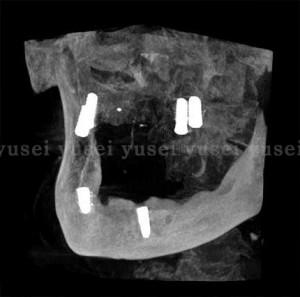 総義歯をやめインプラントオーバーデンチャーを製作中の症例01