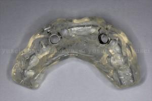 サージカルガイドを用いて審美領域にインプラント抜歯時即時埋入を行った症例02