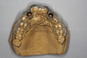 サージカルガイドを用いて審美領域にインプラント抜歯時即時埋入を行った症例03