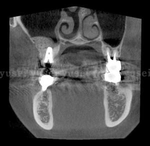 洞粘膜の薄い患者さんに対し上顎洞底拳上手術を行った症例01