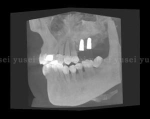 上顎洞底拳上手術の症例と付随する注意点02