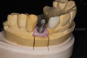上顎前歯部にアトランティスアバットメントを用いた症例02