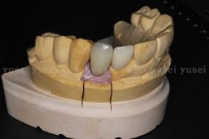 上顎前歯部にアトランティスアバットメントを用いた症例03
