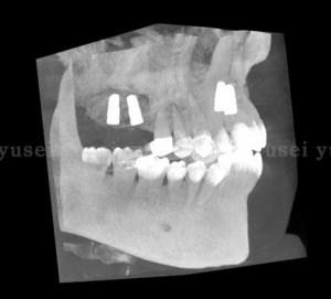 上顎臼歯部にサイナスリフトを行いXiveインプラントを埋入した症例_04