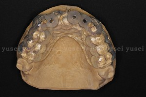 審美領域に歯牙支持型のサージカルガイドを使ってインプラントを埋入した症例02