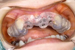 審美領域に歯牙支持型のサージカルガイドを使ってインプラントを埋入した症例03