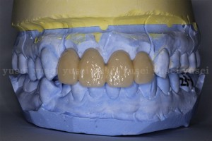 審美領域に歯牙支持型のサージカルガイドを使ってインプラントを埋入した症例04