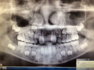 子どもの過剰埋伏歯を抜歯した症例_04