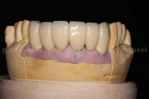 アトランティスアバットメントを用いて審美領域にインプラントによる修復治療を行った症例_04