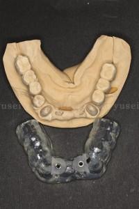 頬舌幅が足りない下顎骨にサージカルガイドを用いてインプラントを埋入した症例_02