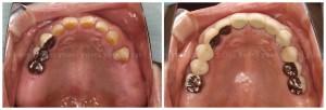 両側の臼歯部にインプラントを埋入し、全顎的な治療を行うことになった症例_02